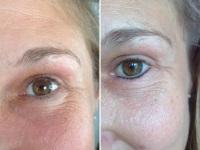 Permanent-Make-up vorher/nacher